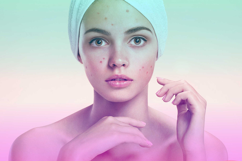 Como cuidar tu rostro en casa si tienes acné